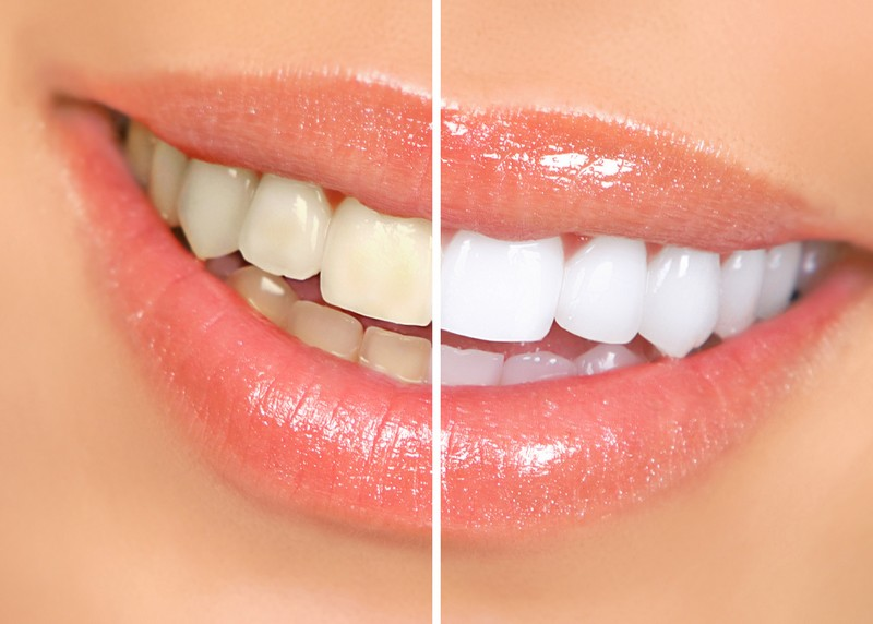 teeth whitening services Biddeford, ME